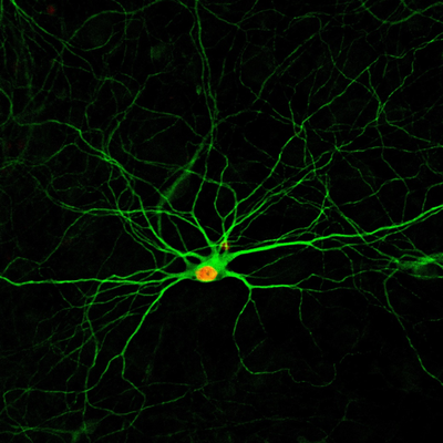 A simple treatment using four small molecules converts human astrocytes – a common type of cells in the nervous system – into new neurons, which develop complex structures after 4 months, as pictured. Credit: Gong Chen Lab, Penn State